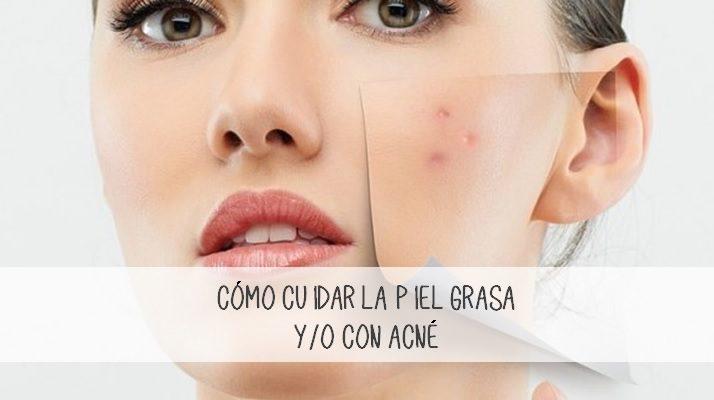 Como cuidar la piel grasa con acné